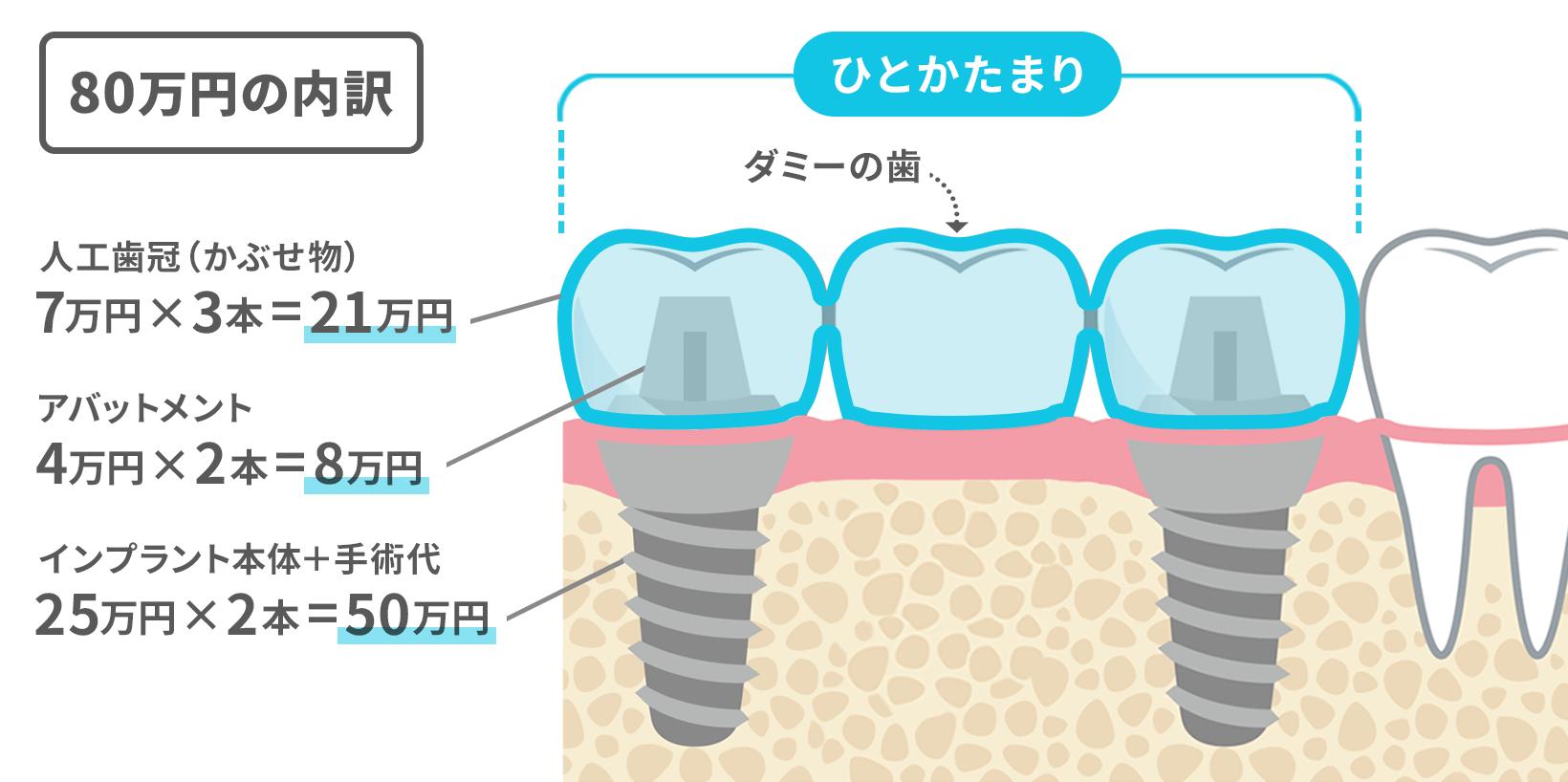 インプラント2本の間にダミーの歯を作る。80万円の内訳は、かぶせ物7万円×3本=21万円、アバットメント4万円×2本=8万円、インプラント本体+手術代25万円×2本=50万円