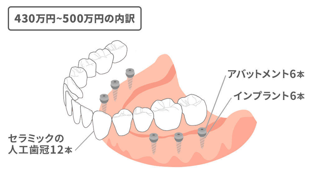 歯茎全体に6本のインプラント、総入れ歯のように上から人工歯冠をかぶせる