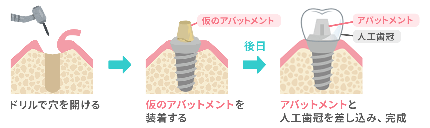 1回法の手術図。歯茎を切開してインプラントを埋め込み、顎の骨に馴染むまで待ってからアバットメント(土台)に人工歯を差し込む