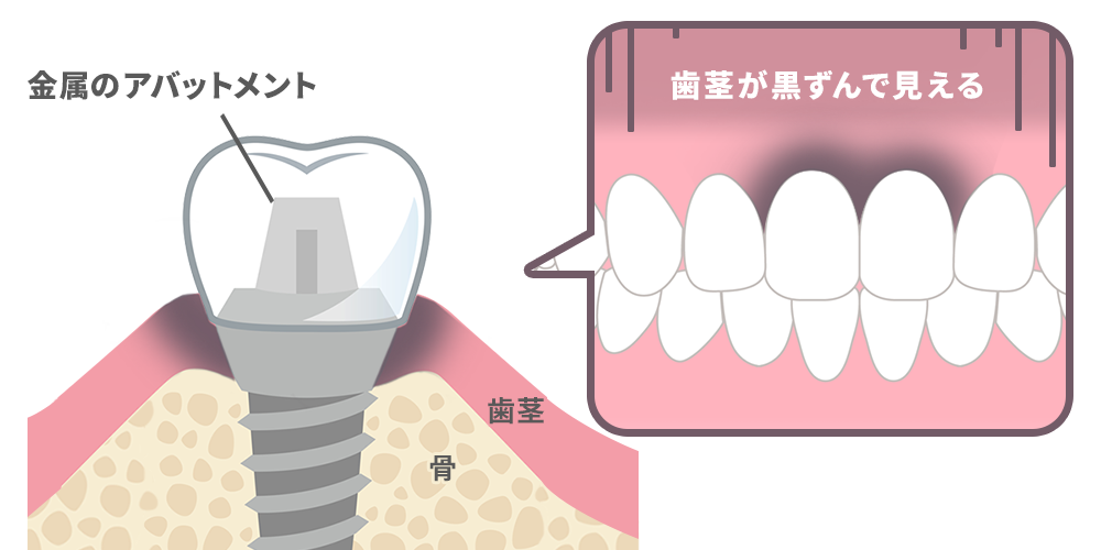 金属のアバットメントでは歯茎が黒ずんで見えることも
