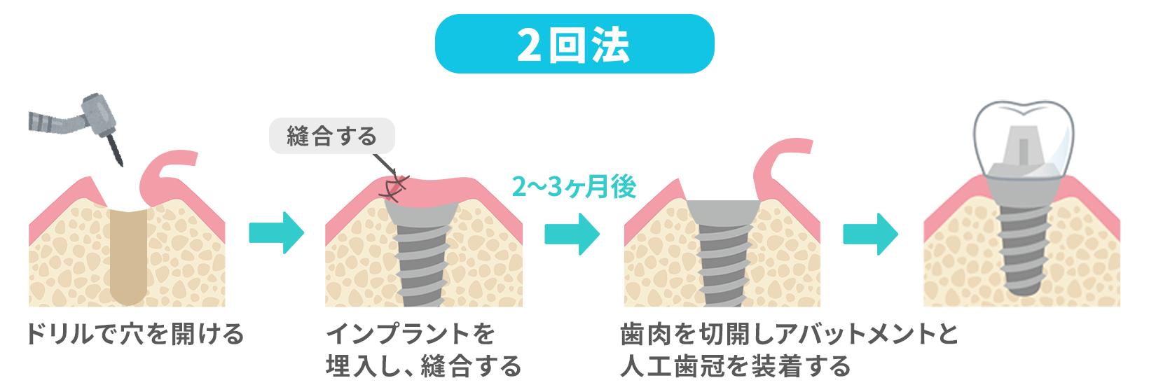 2回法の手術図
