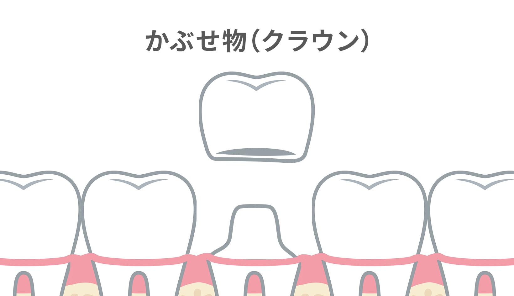 クラウンとは、虫歯治療で歯を大部分削ったり、歯並びを整える時に使うかぶせ物・差し歯のこと