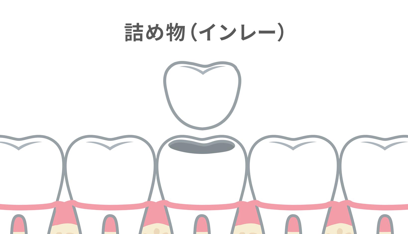 インレーとは、虫歯治療などでできた穴に詰める詰めもののこと