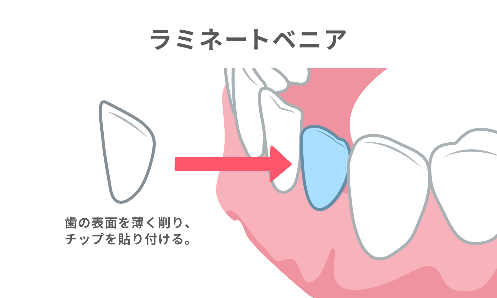 ラミネートベニアでは、歯の表面を薄く削り、薄いセラミックのチップを貼り付ける