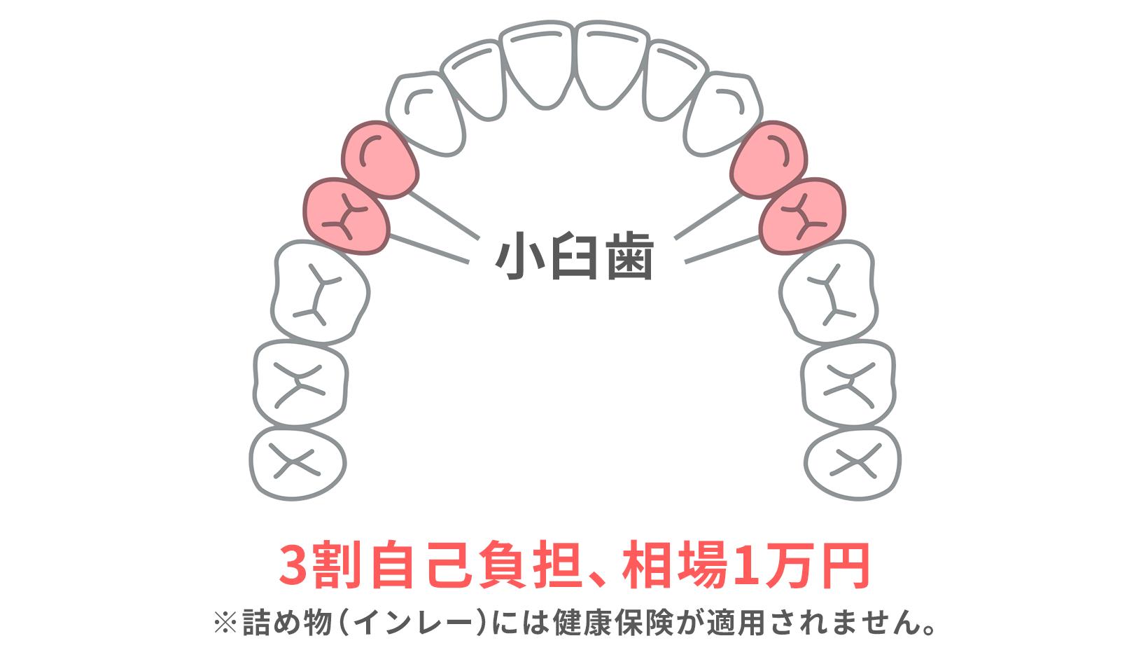 前歯から数えてから4~5番目の歯である小臼歯に使用するかぶせ物の場合のみ、健康保険が適用される。3割自己負担で相場1万円