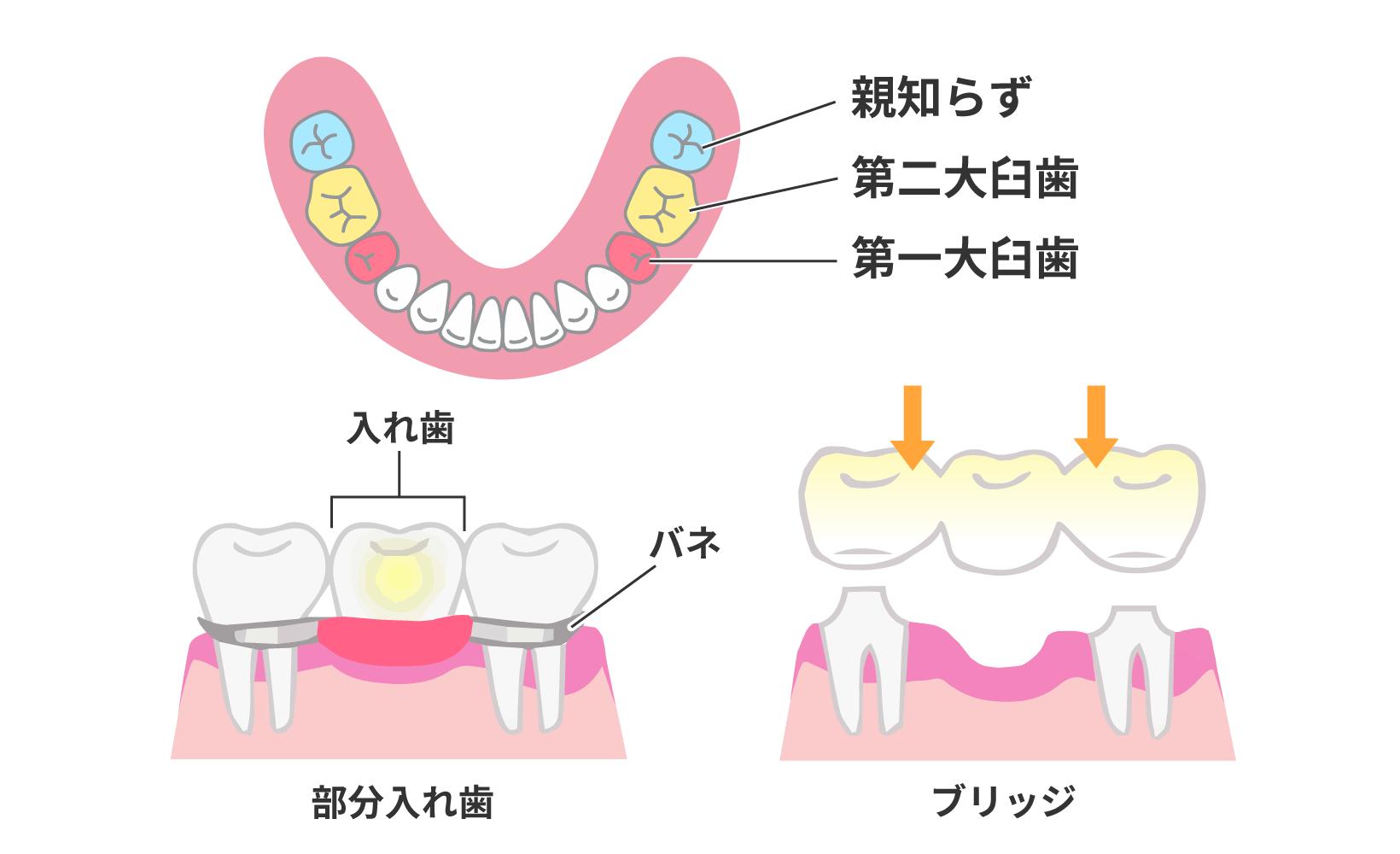 親知らずを抜いた場合、第一・第二大臼歯がなくなったときにブリッジの土台にしたり入れ歯のバネをかけたりできなくなる