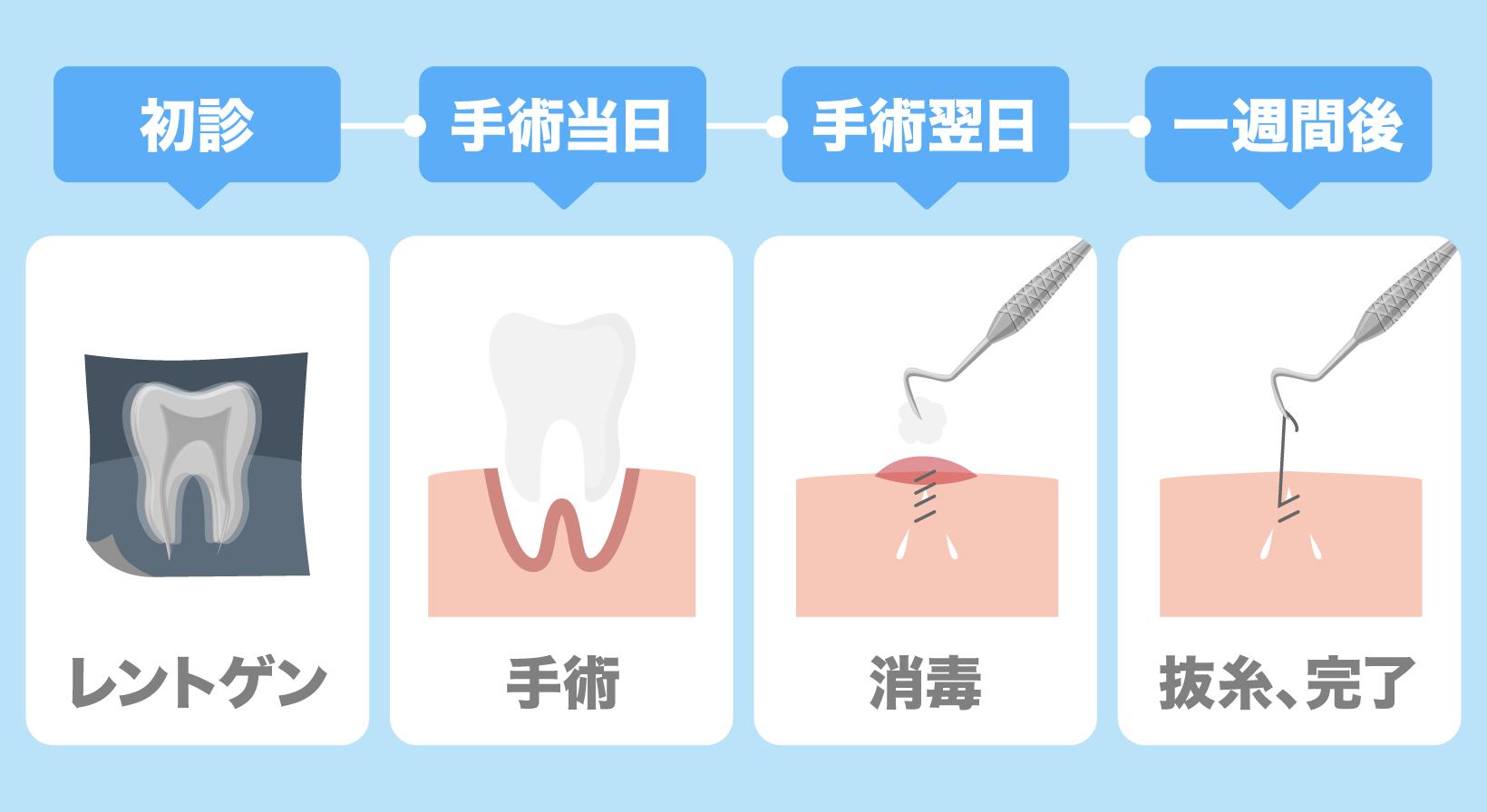 日帰りでの治療は、初診→レントゲン、手術当日→手術、手術翌日→消毒、一週間後→抜糸、完了となる