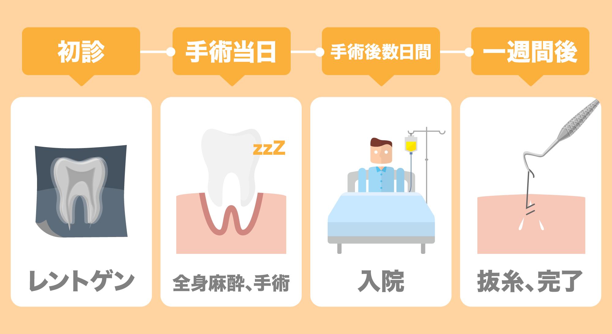 入院して抜歯する流れは、初診→レントゲン、手術当日→全身麻酔をして手術、手術後数日間→入院、一週間後→抜糸、完了となる