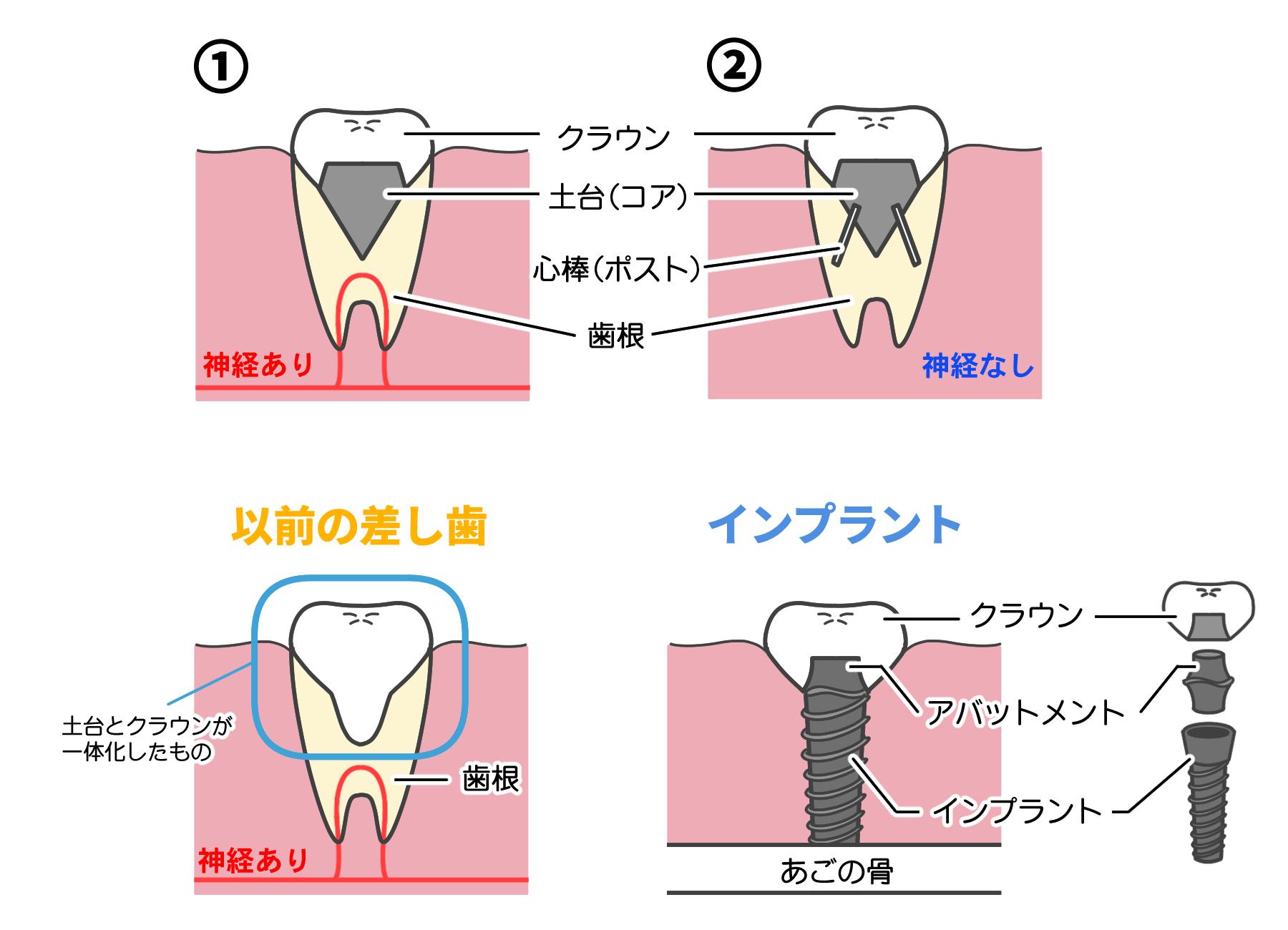 差し歯は自分の歯の根が残っている状態で歯を作る治療法です。パターン①歯根の中心を削り取り、神経を残したまま金属やセラミックの土台をつけて歯の形をした被せ物をします。パターン②歯根はあるけど神経がない場合は、神経のあった空洞部分に心棒をたて、それを元にコアを作ってからクラウンを被せます。以前の差し歯は、土台とクラウンが一体化したものを歯根に差し込んでいたので差し歯と呼ばれていました。よく差し歯と比較されるインプラントは、歯根がない状態でインプラントを埋め込み新たに歯を作る治療法です