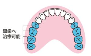 前から5番目以降の歯は銀歯に治療可能